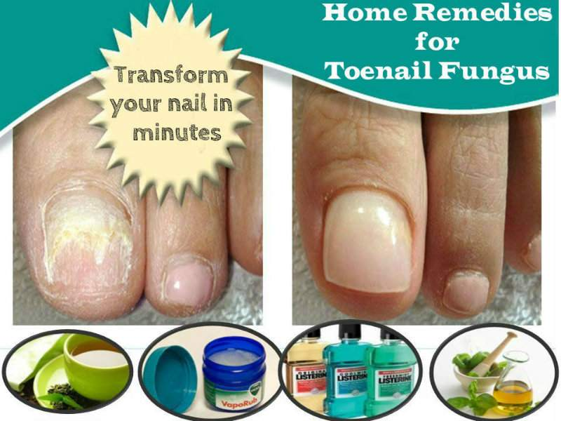 Remedies For The Removal Of Toenail Fungus | Punjab Star News